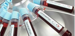 Brasil tem 291 casos confirmados do Novo Coronavírus