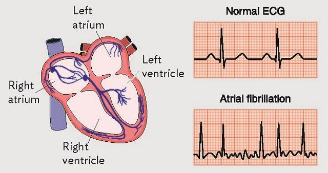 symptoms causes atrial fibrillation