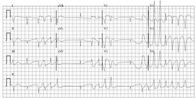 ECG of Dofetilide toxicity and torsade(s) de pointes ventricular tachycardia (VT)