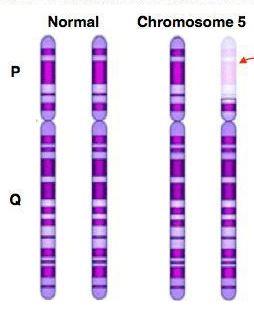 http://www.scienzita.it/lezioni/biologia/mutazioni_criduchat.jpg