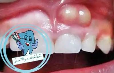 اسكتلندي قليل قاتل تنظيف الخراج في الاسنان Comertinsaat Com