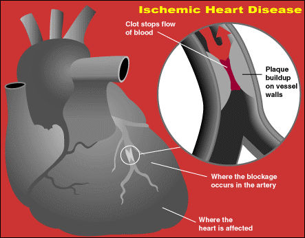 Ischemic heart disease is where atherosclosis affects the coronary arteries in the heart
