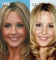 Amanda Bynes Plastic Surgery - A Blunder!   Amanda bynes