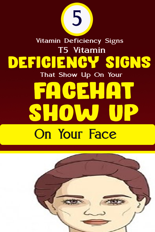5 Vitamin Deficiency Signs That Show Up On Your Face