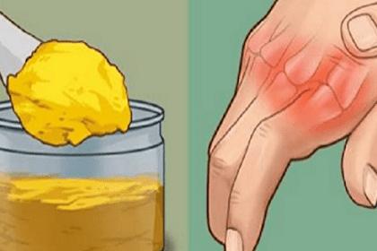 كيفية علاج الروماتيزم بالاعشاب بطرق مجربة