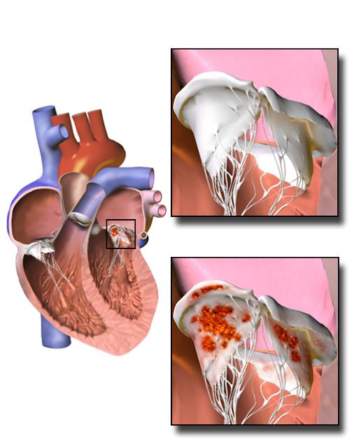 दिल की बीमारी के लक्षण और दिल की बीमारी का 5 घरेलू इलाज