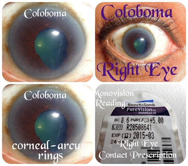 Coloboma Corneal-Arcus Micro-Phthalmia Astigmatism
