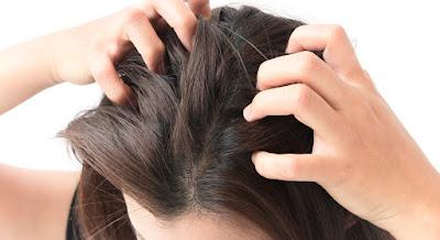 Apa yang menyebabkan rambut rontok dan berketombe?