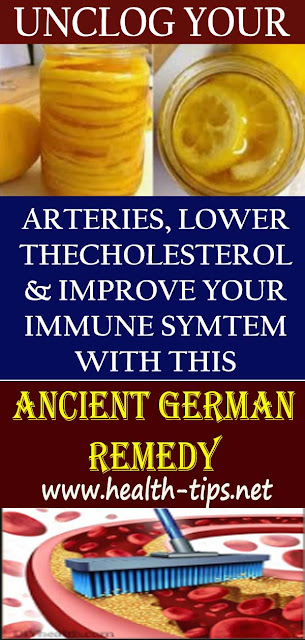 Ancient German Remedy That Will Unclog Arteries, Lower Cholesterol And Improve Your Immune System!#NATURALREMEDIES
