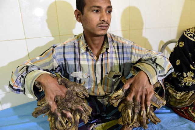 Unfortunate Man Had a Rare Condition Which Required 16 Surgeries To Repair his Hands! - Check it Out!
