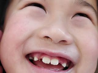 mimpi gigi patah