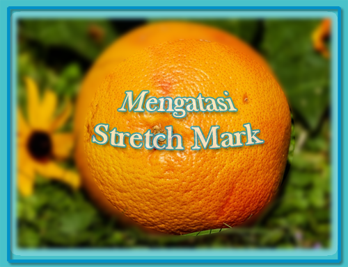 Menghilangkan Stretch Mark PIXABAY