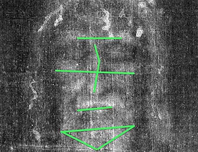 As linhas craniométricas permitem identificar rostos. No caso do Homem do Sudário um rosto muito deformado pelas lesões