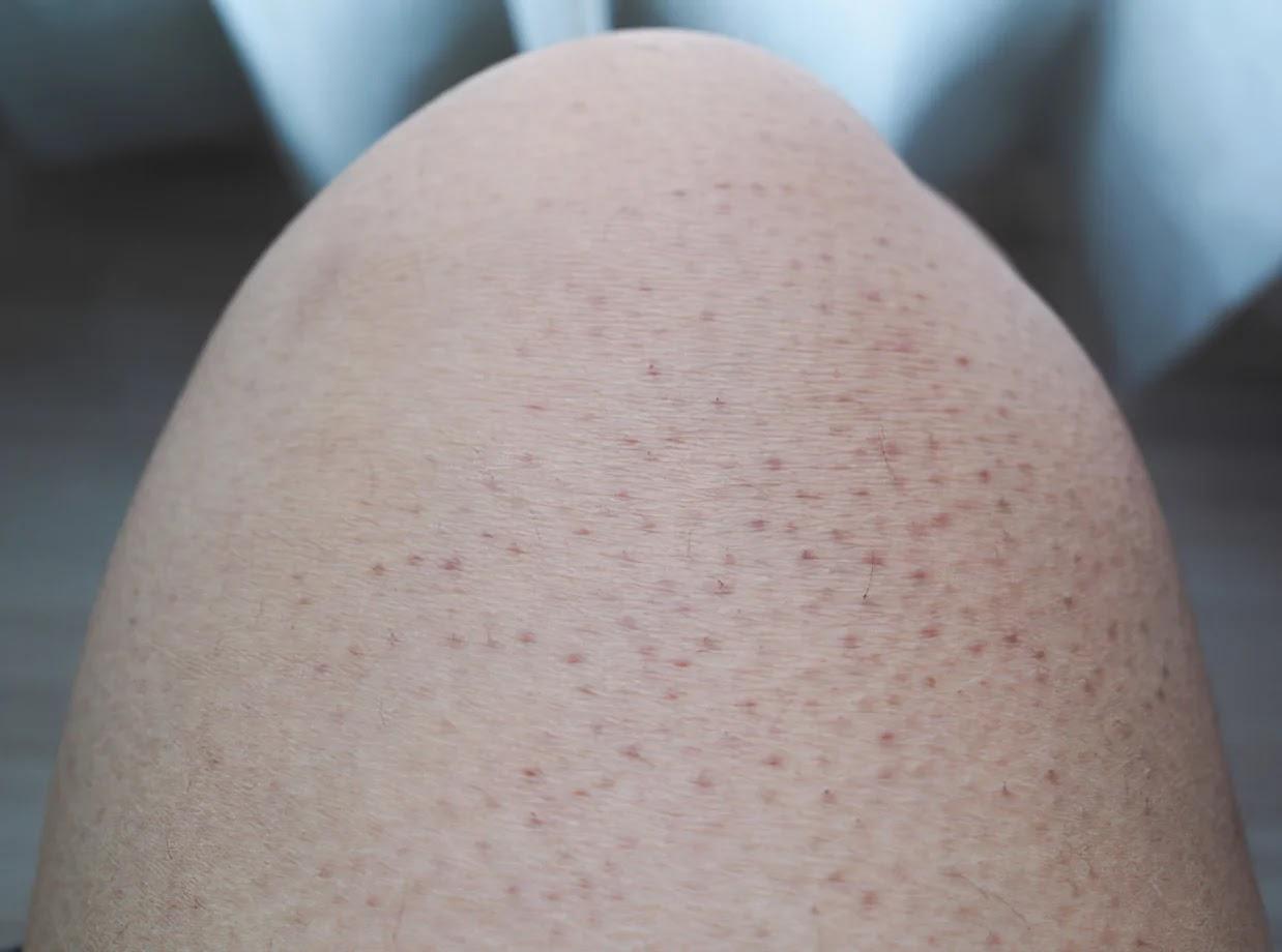 Triệu chứng là có những sần nhỏ kích thước khoảng 1 – 2mm, màu hơi trắng hoặc xám.