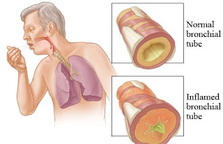 Ramuan Penyakit Bronkhitis