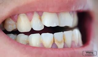 cara alami gigi karatan, menghilangkan karat pada gigi