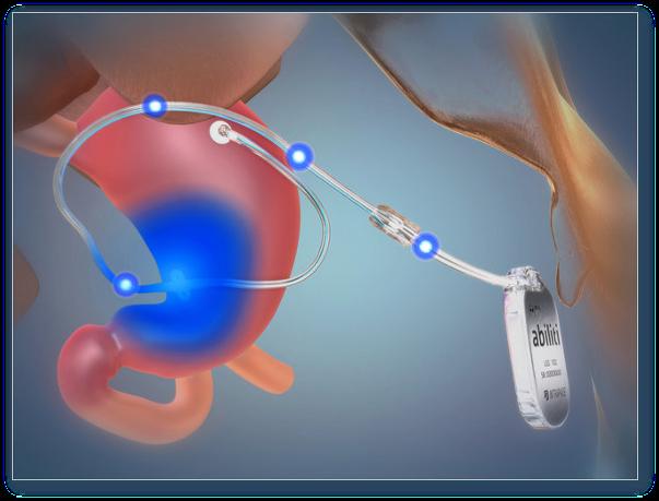 Pacemaker-ul gastric: interventia viitorului pentru noi toti?