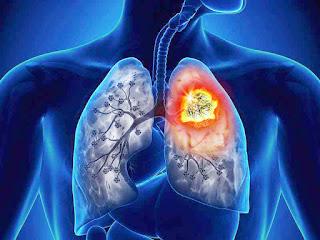 Agosto Branco: a importância da conscientização do câncer de pulmão