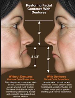 Dentures Designed