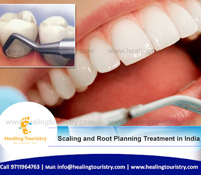 Scaling and Root Planning Treatment in India