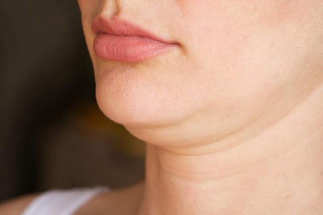 Dagu Berlipat yang Mengganggu Penampilan, Berikut Penyebab dan Cara Ampuh Mengatasi