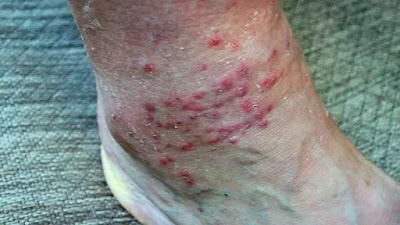 This is a very typical appearance of chigger bites.