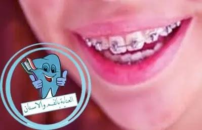 التقويم, تقويم الاسنان, تقويم, تقويم اسنان, شفاف, اسعار تركيب الاسنان, التقويم الشفاف, اسعار تقويم الاسنان, تقويم الأسنان, انواع التقويم, سعر تقويم الاسنان, تقويم سنة 2019, اسعار تقويم الاسنان بالجنيه المصري, تقويم الاسنان الشفاف, اسعار تركيب الاسنان فى مصر 2018, تقويم شفاف, تكلفة تقويم الاسنان, انواع اطقم الاسنان المتحركة واسعارها, تقويم الاسنان للاطفال, سعر طقم الاسنان المتحرك في مصر, اسعار تركيبات الاسنان المتحركة, انواع تقويم الاسنان, تركيب الاسنان المتحركة, اسعار زراعة الاسنان فى الاسكندرية, اصناف الاسنان, افضل مركز لعلاج الاسنان في مصر, مدة تقويم الاسنان للكبار, اسعار تركيبات الاسنان, اسعار طقم الاسنان المتحرك, سعر الكرسي المتحرك العادي في مصر, اسعار تقويم الاسنان فى مصر, انواع تركيبات الاسنان واسعارها في مصر