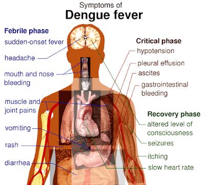 demam berdarah adalah wikipedia