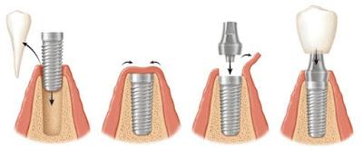 rang-su-implant-co-tot-khong