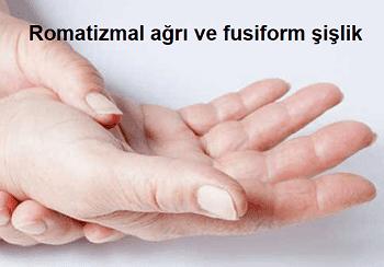 Romatizmal semptomları Romatizmal ağrı ve fusiform şişlik