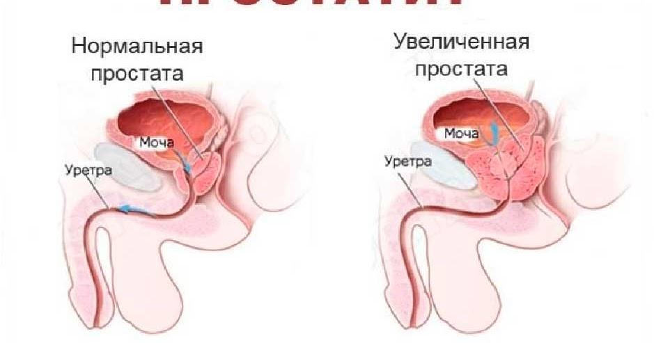 Вылечил хронический простатит за месяц магнитотерапия для простатита