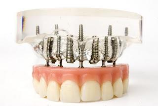todos os dentes em quatro