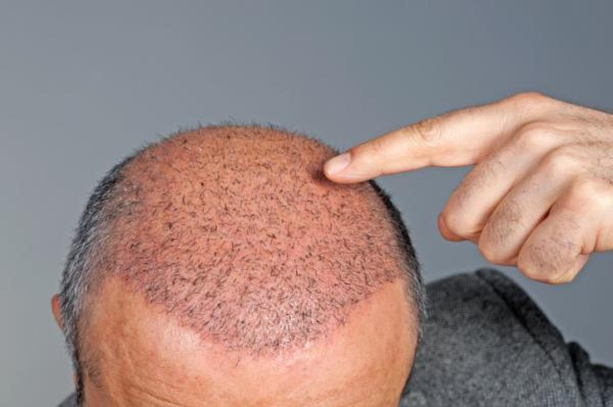 What are the most common hair problems