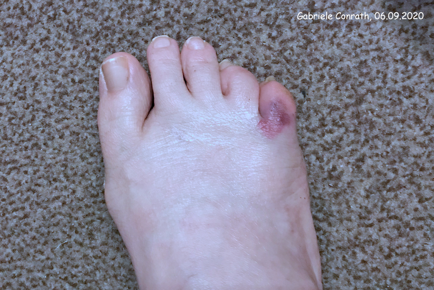 Fußzeh gebrochener Geprellter oder