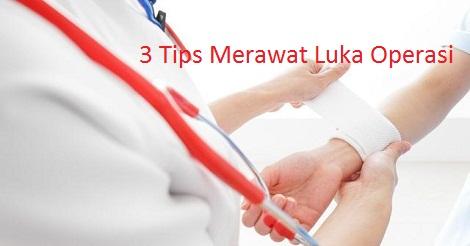 3 Tips Merawat Luka Bekas Operasi