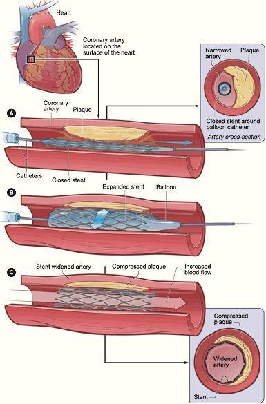 Pemasangan stent pada jantung koroner
