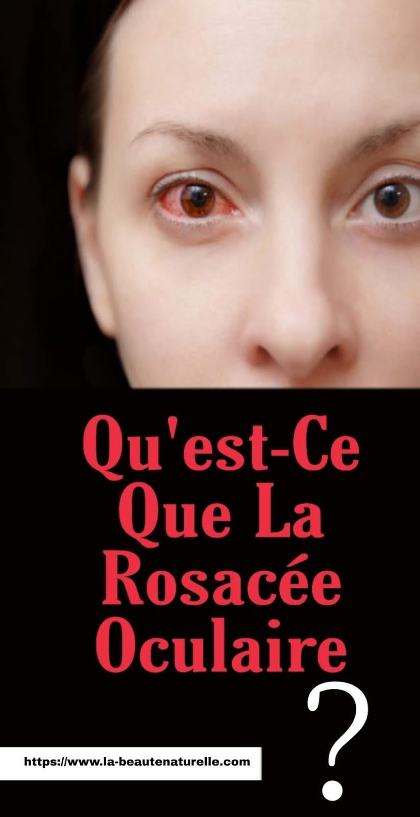 Qu'est-Ce Que La Rosacée Oculaire?