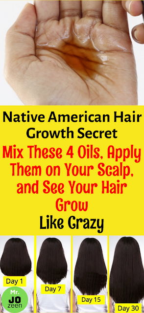 Native American Hair Growth Secret| Mix These 4 Oils, Apply Them on Your Scalp, and See Your Hair Grow Like Crazy