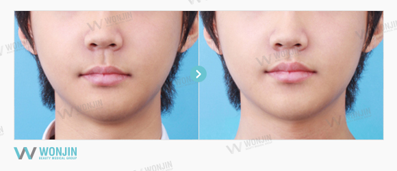 philtrum reduction