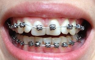 افضل دكتور تقويم اسنان بالرياض