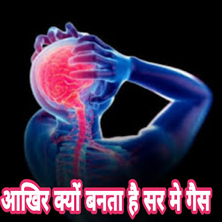 Migraine symptoms in hindi