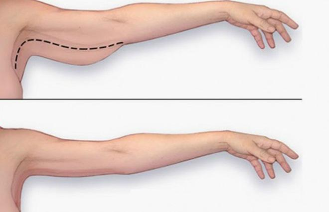 Tạm biệt ngấn mỡ ở bắp tay siêu đơn giản