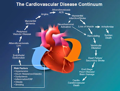 Why Is Heart Disease The Leading Killer Of Women? - Dr. Shokooh (VIDEO)