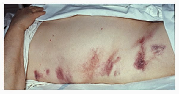 adalah istilah medis untuk radang pankreas Penyebab, Gejala Dan Pengobatan Pankreas Kronik dan Akut