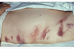 Penyebab, Gejala Dan Pengobatan Pankreatitis Kronis Dan Akut