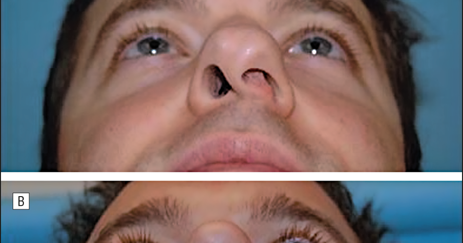 WiKi HEALTH CARE: When the nose bones are curved