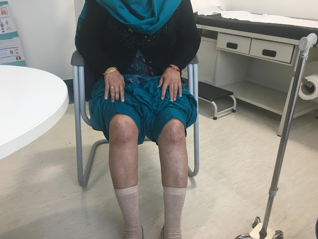 Partial-Knee Replacement Surgery Alleviates Excruciating Pain in Woman; Offers Solution to Younger People