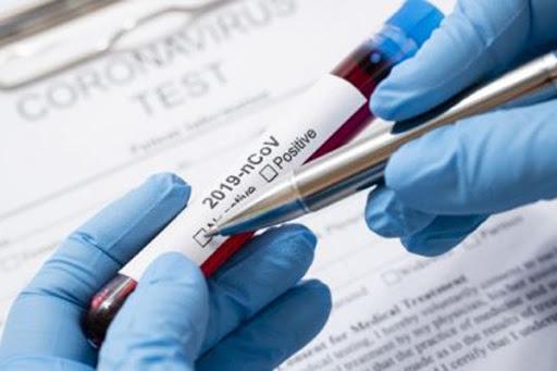 Delapan Orang Dinyatakan Sembuh dari 24 Pasien Positif Covid-19 Maros