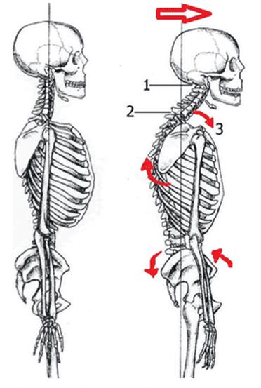 changement postural du cou mauvaise circulation de la lymphe