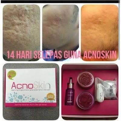 Image result for aurawhite acno skin